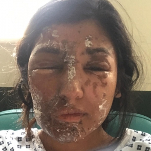 acid attack victim Pt. 2